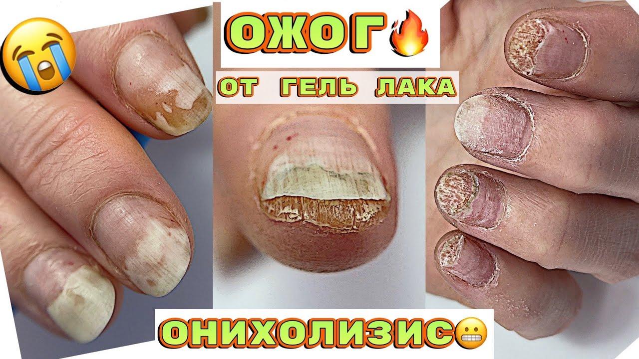 ТЕРМИЧЕСКИЙ ОЖОГ ногтевой пластины 😱 Огромный онихолизис 🙁 Маникюр