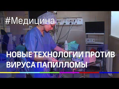 Уникальную технологию лечения вируса папилломы практикуют столичные медики