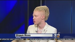 First Male Model With Albinism Says He Loves The Skin He's In