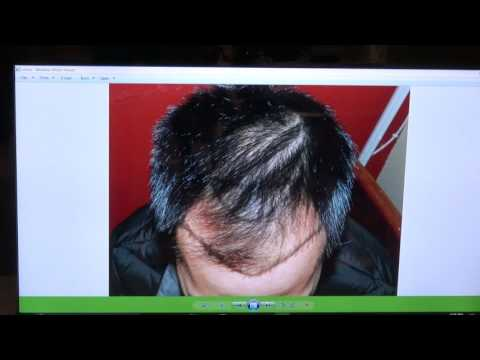 FUE Hair Transplant California Bay Area Silicon Valley Hair Loss Surgery http://www.mhtaclinic.com