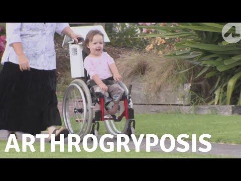 An Unusual Condition: Arthrogryposis