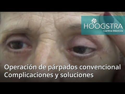 Operación de párpados convencional - Complicaciones y soluciones (18236 )