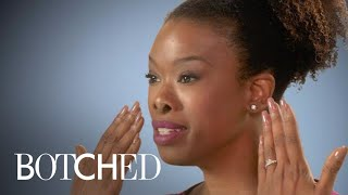 Kelli's Desire for a Smaller Nose Ends in Disaster | Botched | E!
