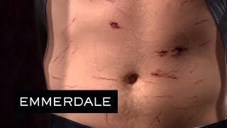 Emmerdale - Aaron's Bloodstained Stomach Is Revealed