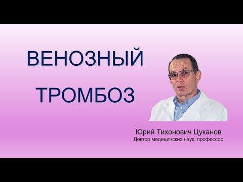 Тромбоз глубоких вен нижних конечностей, лекция для врачей