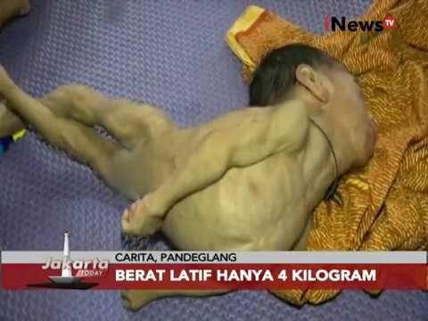 Kisah Balita Gizi Buruk Jakarta - Jakarta Today 24/11