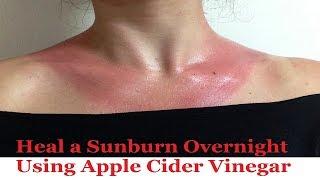 Heal a Sunburn Overnight ¦¦ Using Apple Cider Vinegar ☼