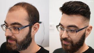 Volle Haare OHNE OP | Zuschauer GLÜCKLICH machen