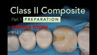 Class II MO Composite Prep wit…
