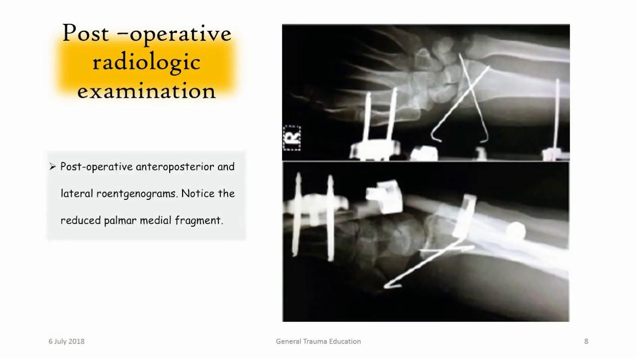 Distal Radius Articular Multifragmentary Fracture / El bilek eklem içi parçalı kırığı
