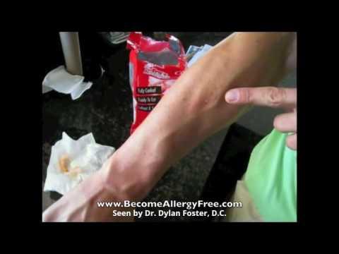 Watch his BAD shrimp allergy reaction go away!
