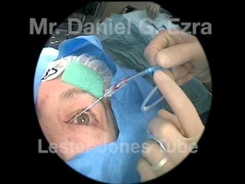 Lester Jones Tube Insertion, Moorfields Eye Hospital