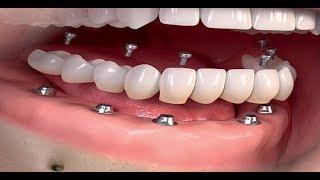 İmplant Yaptırmanın Sebepleri Nedir? | Diş Hekimi Arzu TEKKELİ