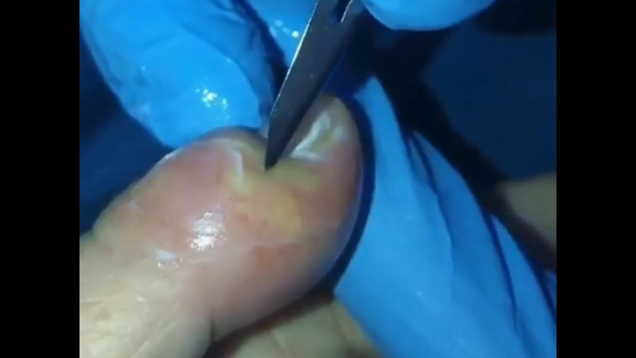 Finger Abscess Incision & Drainage [Must Watch]