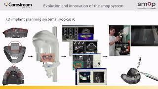 Carestream Dental SMOP Digital Dental Implant Guided Surgery