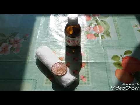 Гигрома: когда жидкость в ненужных местах