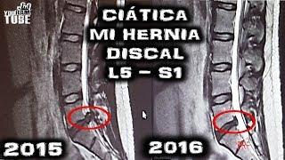 CIATICA HERNIA DISCAL L5S1 TRATAMIENTO! MI RESONANCIA MAGNÉTICA! Sané SIN cirugía!