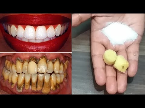 Instant Teeth Whitening Remedy, Get Whiten Teeth at Home in 2 Minutes
