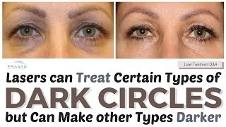Treating Dark Circles - How Lasers can Treat Some Causes, and Other Treatments to Improve Color   Amiya Prasad, M.D.