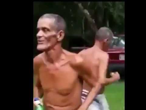 El Hombre Mas Flaco Del Mundo Los Hombre Mas Flaco Del Mundo Parte 2