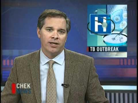 TB Outbreak
