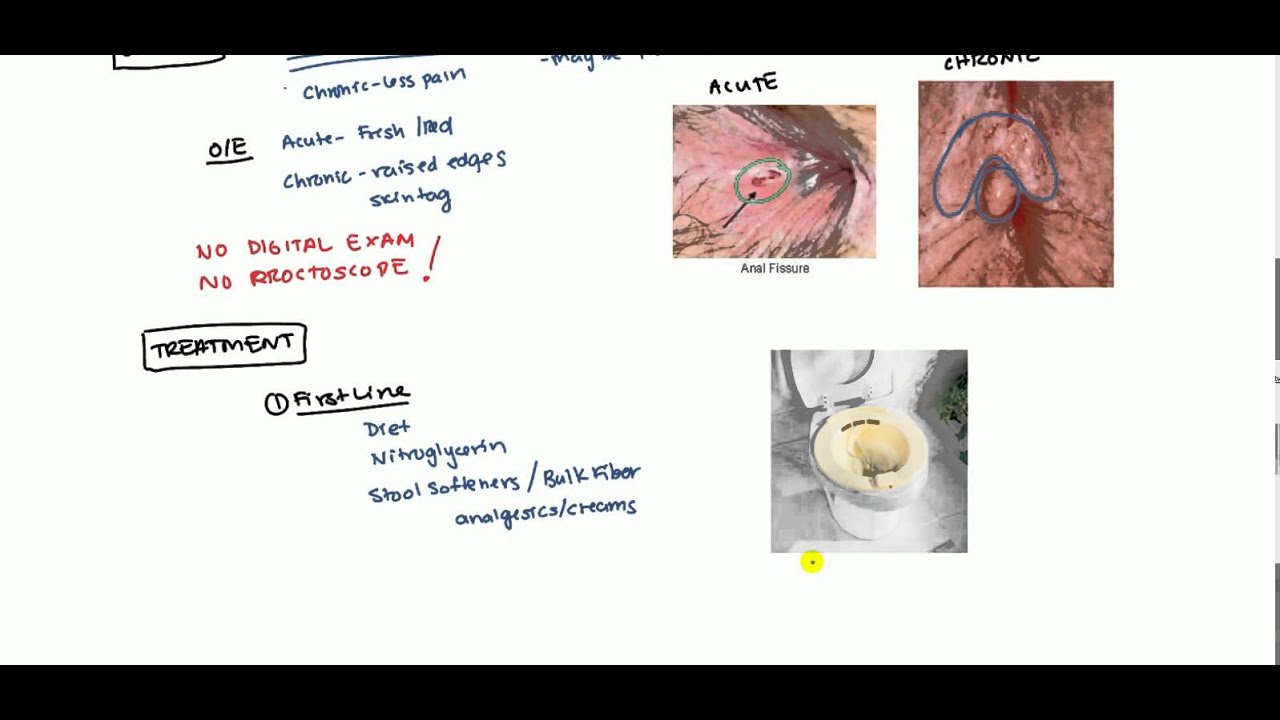 Anal Fissures Lecture for USMLE - YouTube