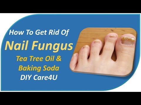 How To Get Rid Of Nail Fungus – Tea Tree Oil & Baking Soda -DIY Care4U