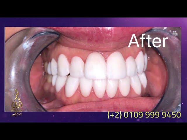 تجميل الاسنان بالايماكس فينير في دار الجمال - القاهرة