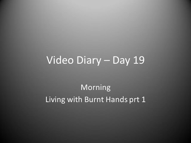 Day 19 Morning : Living with Burnt Hands (prt 1)