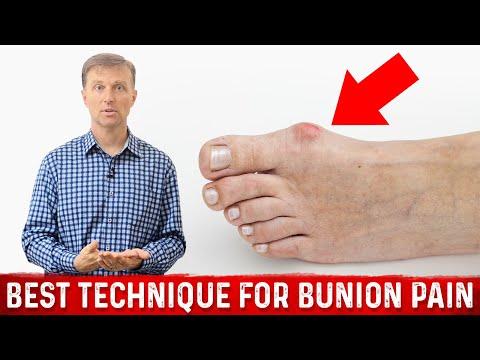 Best Technique for Bunion Pain