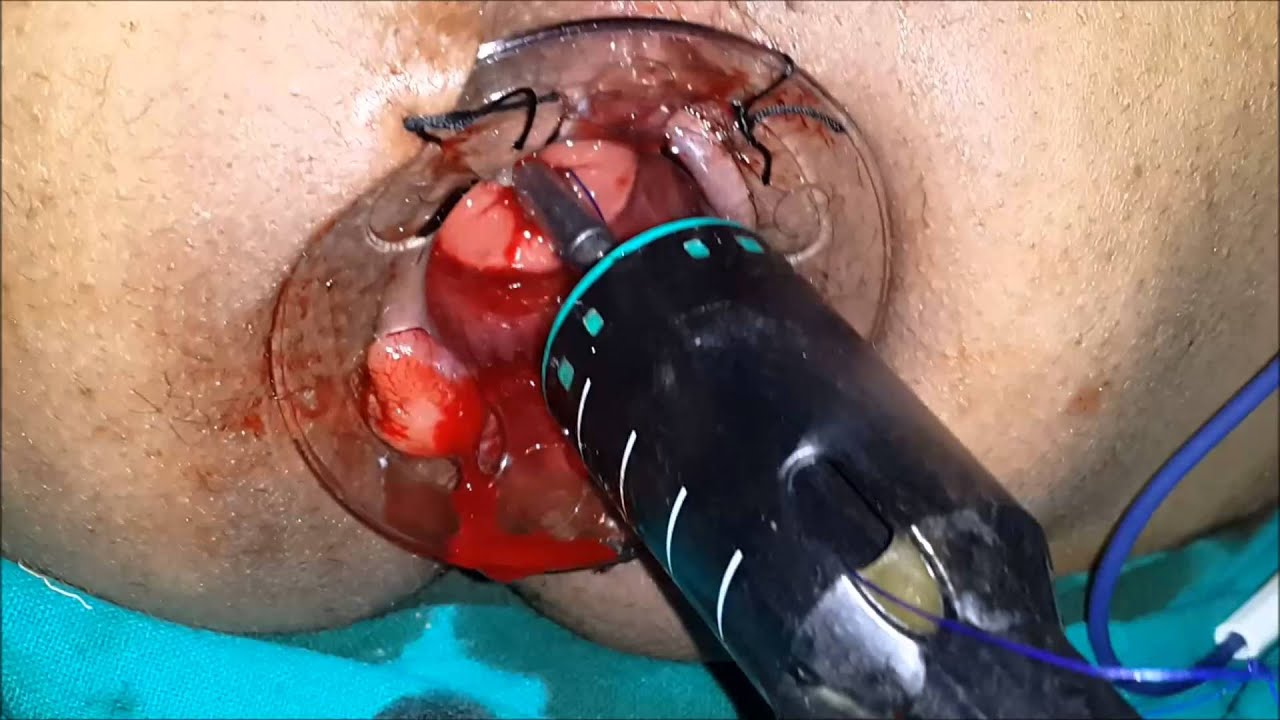 Emergency Surgery For Thrombosed Prolapsed Piles Youtube