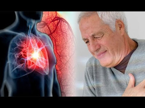 heart disease prevention tips in normal way