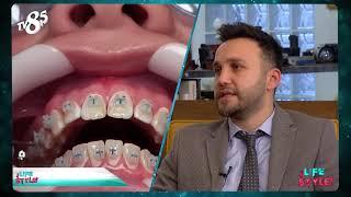 Ortodonti Uzmanı Dr.Dt.Ufuk Ok ile Ortodontik Tedavi Sürecinde Yaşın Önemi Life Style Tv8,5 'ta