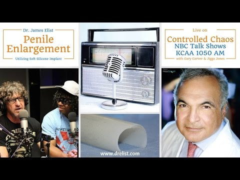 Dr Elist on NBC Talk Radio, KCAA - Penile Enlargement Surgery Cost, Average Penile Size