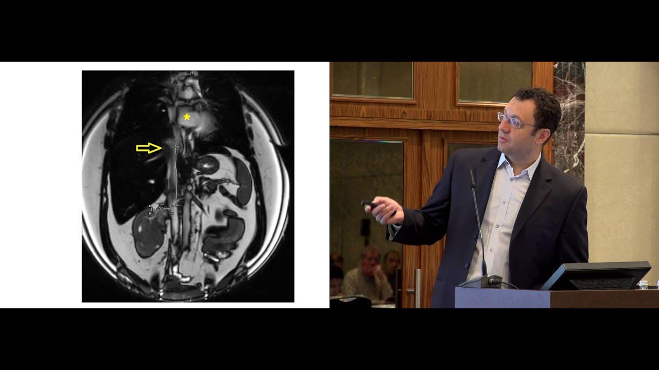 Робот-ассистированная резекция почки – новый стандарт хирургического лечения маленьких опухолей