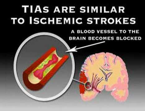 stroke symptoms youtube  Symptoms of Stroke (Stroke #3) - YouTube