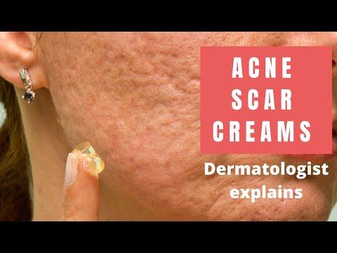 Acne Scar Creams - Dermatologist Reviews