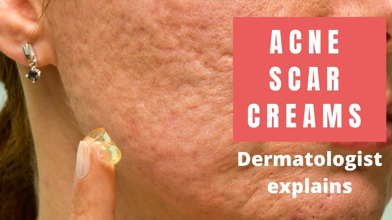 Acne Scar Creams Dermatologist Reviews Youtube
