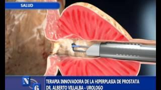 Para cirugia prostata laser cancer de