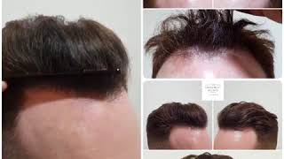 Before and After Hair Transplantation at The Treatment Rooms London thumbnail