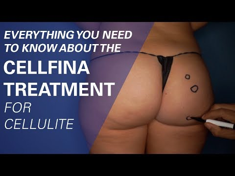 Watch the Full Cellfina Treatment
