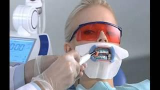 Система відбілювання зубів Beyond відео-інструкція