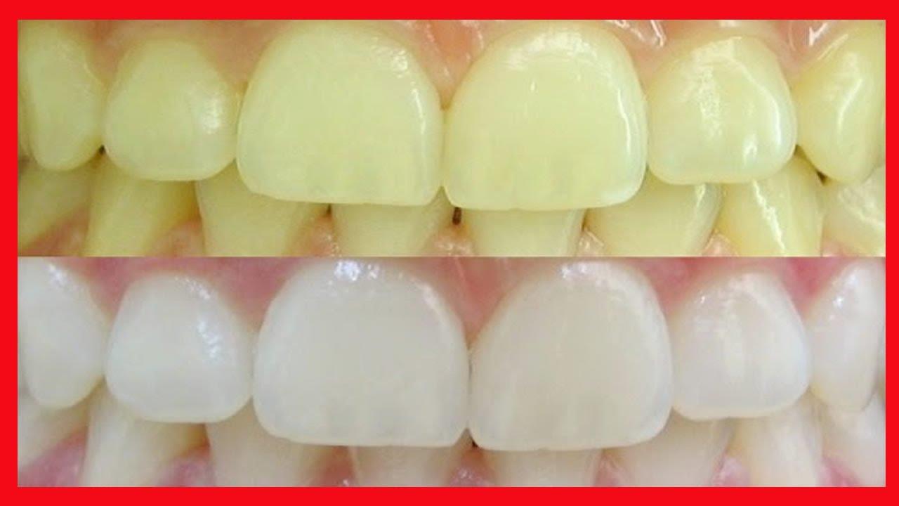 Como Clarear Os Dentes Veja Como Clarear Os Dentes Em Casa Em