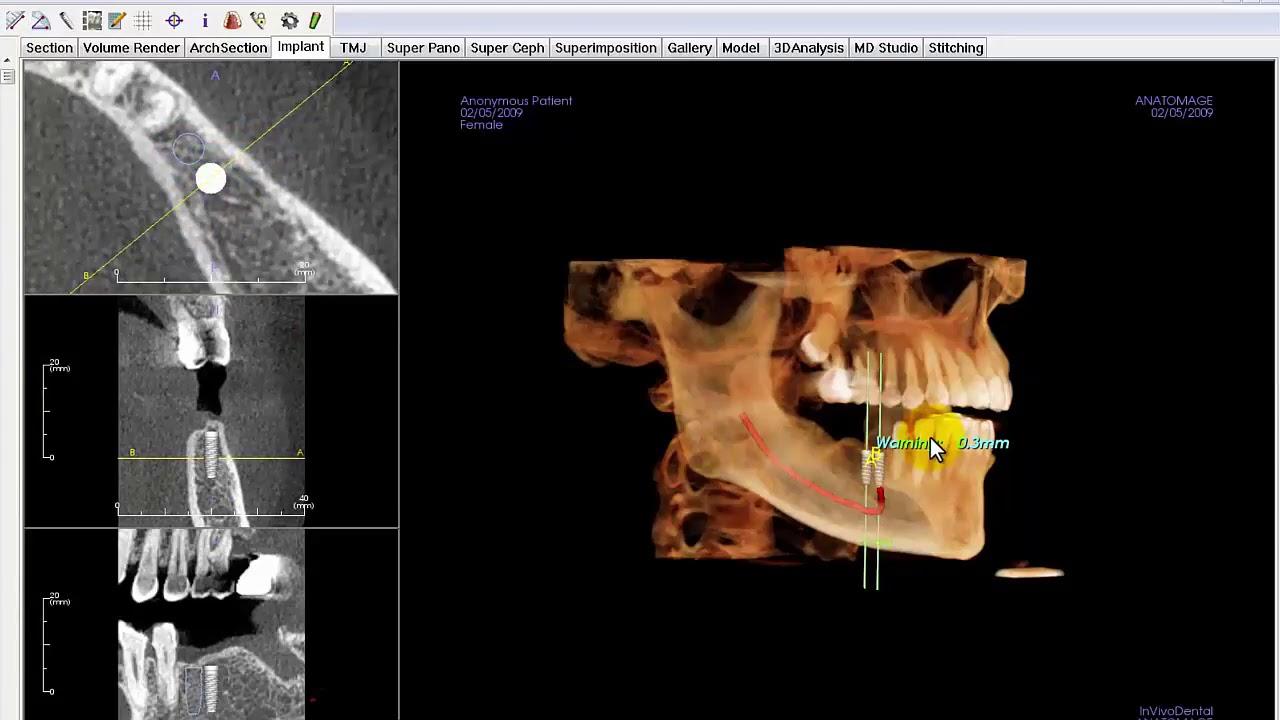 Invivo™ 6 Award-Winning 3D Imaging Software for PC | KaVo Dental