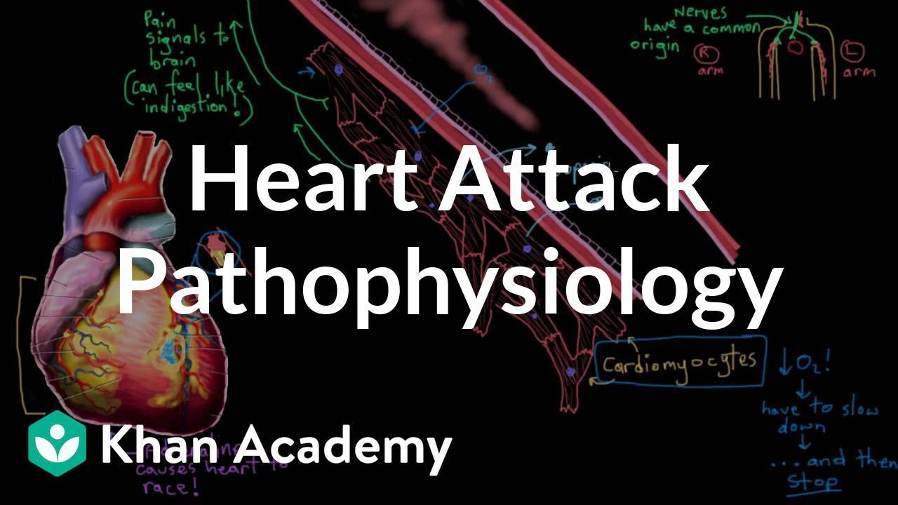 Heart Attack Myocardial Infarction Pathophysiology Nclex Rn Khan Academy