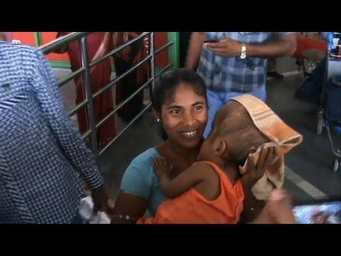 Inde: la fillette hydrocéphale est sortie de l'hôpital