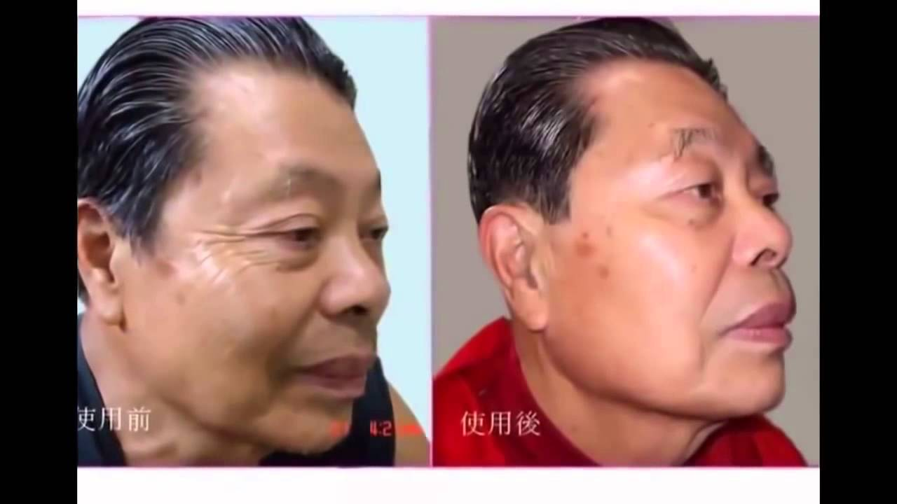 Anti Aging Before After Jeunesse Luminesce Resveratrol It Works