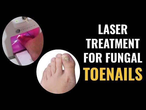 Laser Treatment For Fungal Toenails