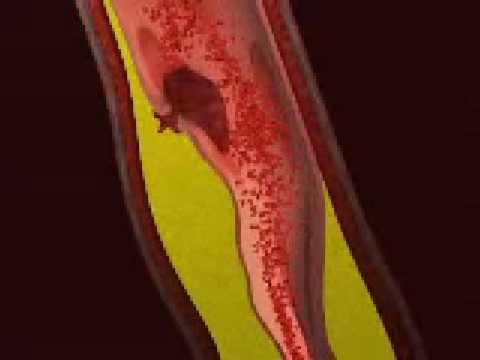 Myocardial Infarction- Animation