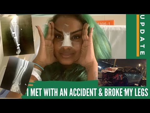 ♡ UPDATE : I MET WITH AN ACCIDENT & BROKE BOTH LEGS |VOGUEUNICORN ♡